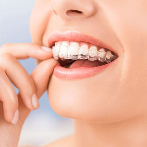 ABS Dentistry Invisalign Fort Lee
