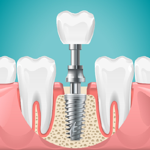 A Beautiful Smile Dentistry Dental Implants
